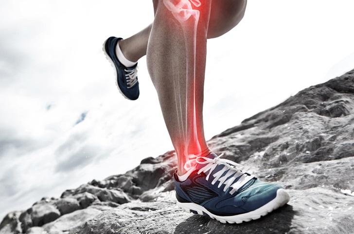 shin splints causes symptoms treatments
