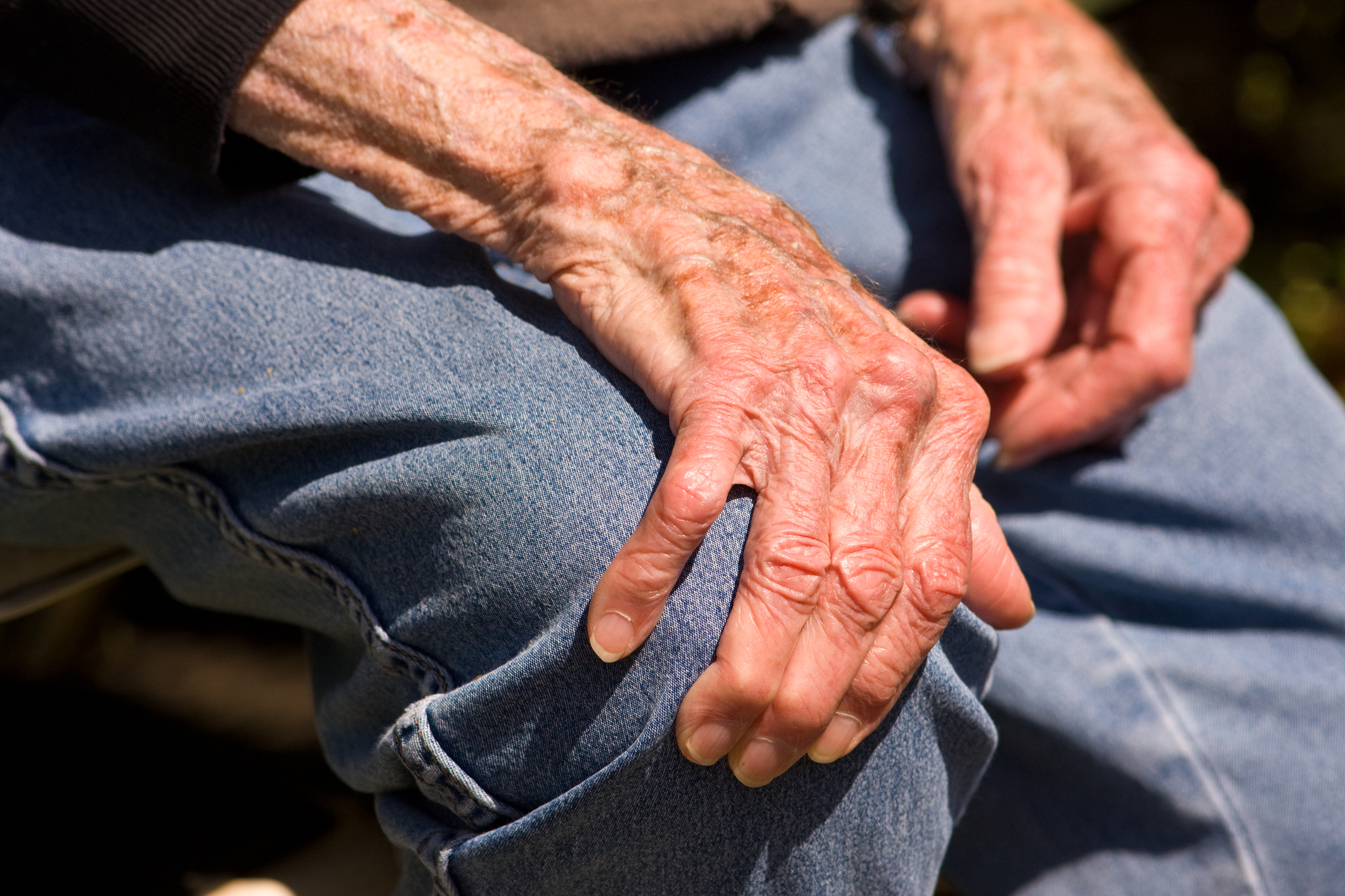 4 Myths About Rheumatoid Arthritis You Might be Believing