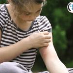 Girl scratching an irritated mosquito bite
